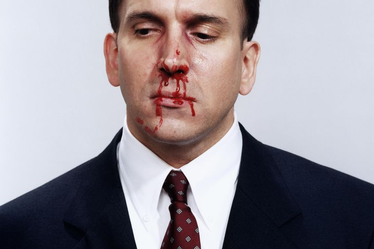Businessman with bloody nose