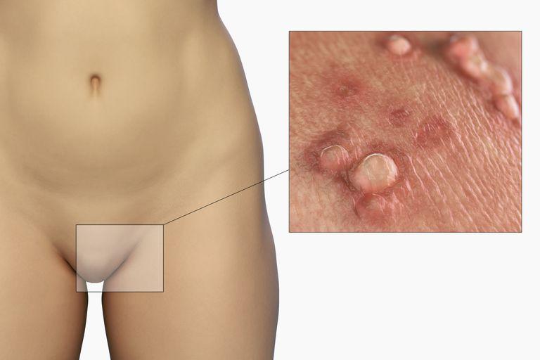 Genital warts on skin of the labia