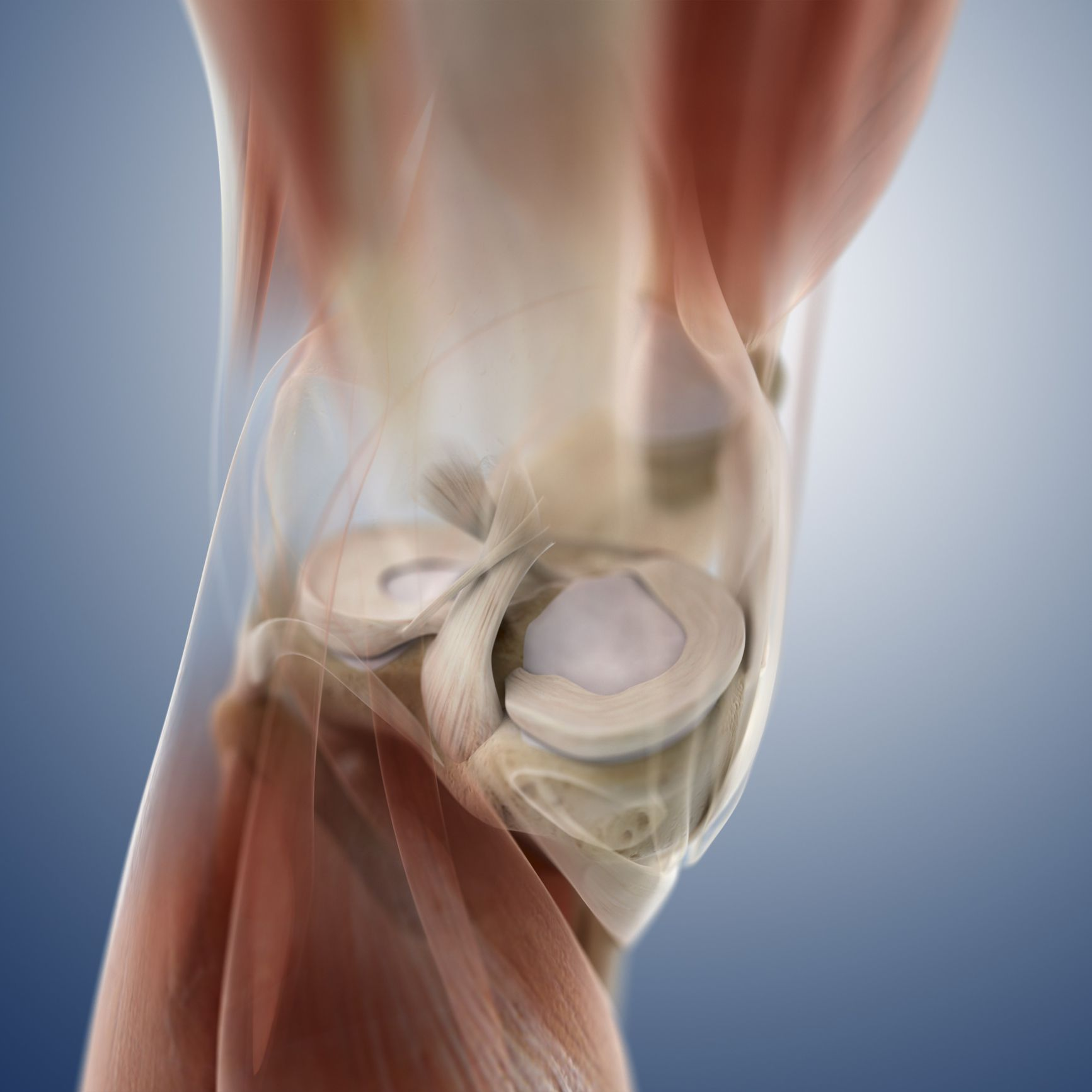 When Is A Meniscus Transplant An Option