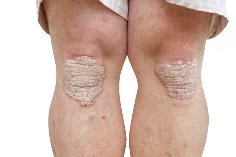 Psoriasis on knees.