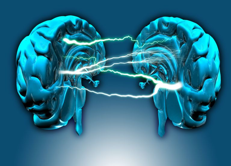 Are You Left Brain or Right Brain Dominant?