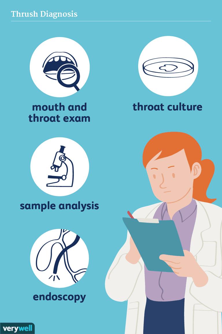 thrush diagnosis