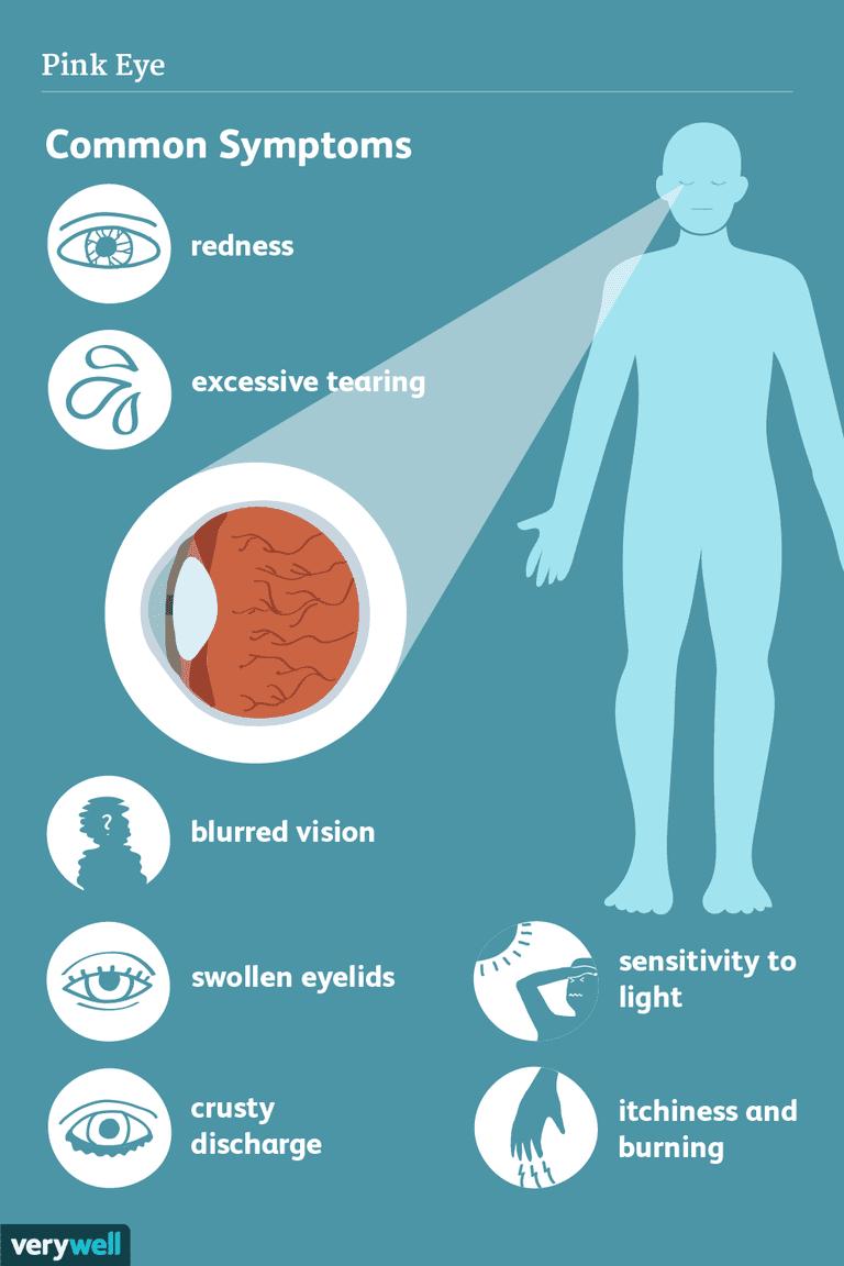 pink eye symptoms