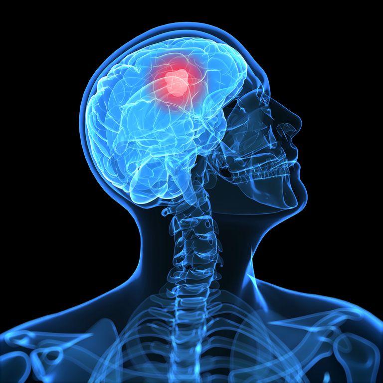 Brain cancer, artwork