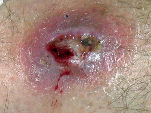 Mrsa and tattoos what are the risks for Antibiotics for infected tattoo