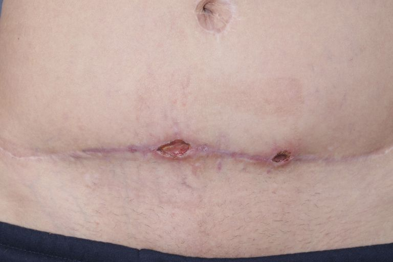 MRSA infection after tummy tuck