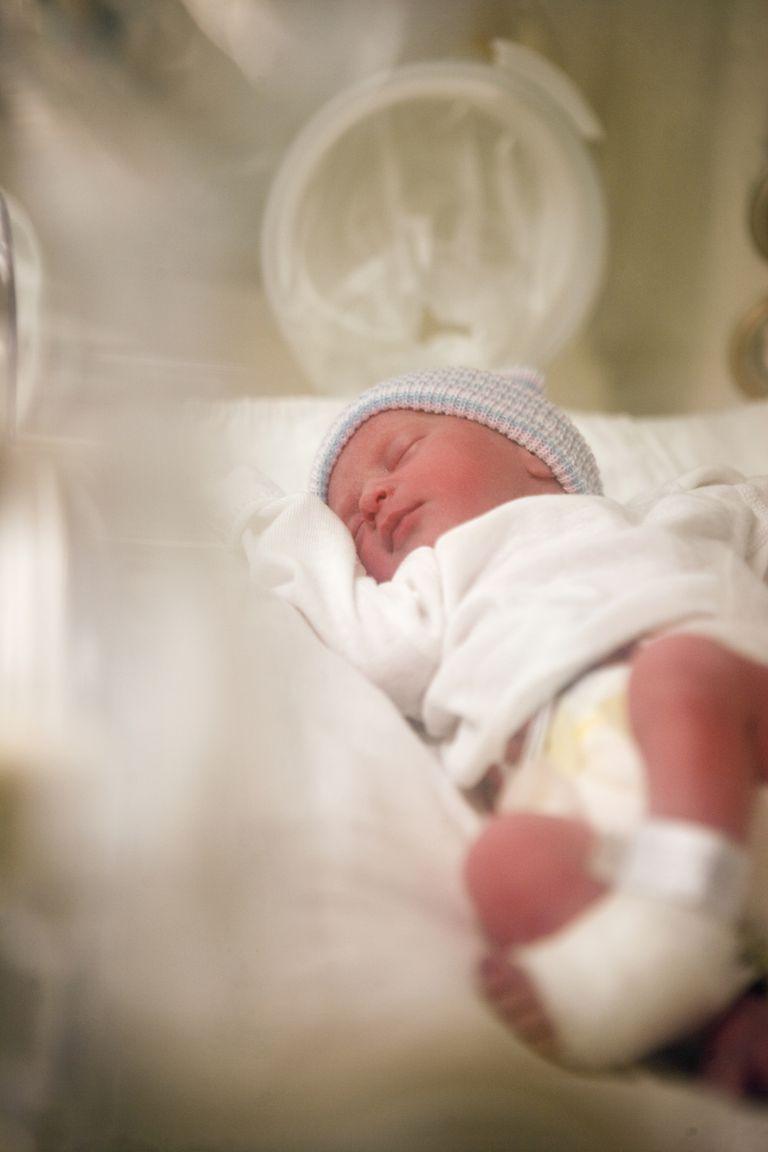 Premature baby in incubator in NICU