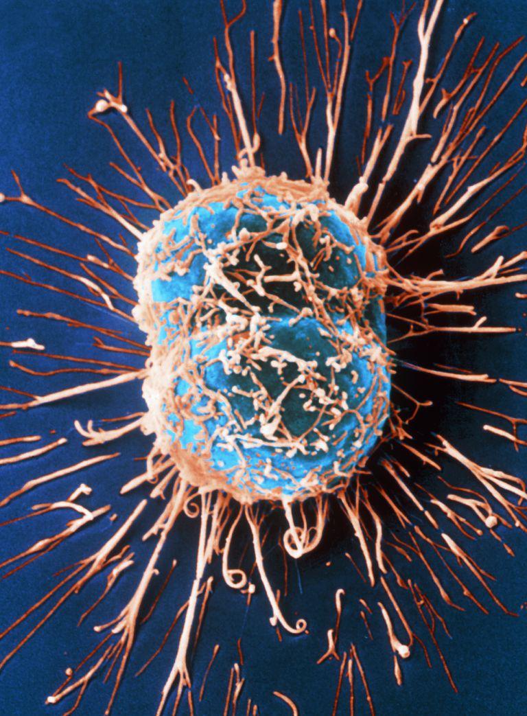 Cervical Cancer Cells