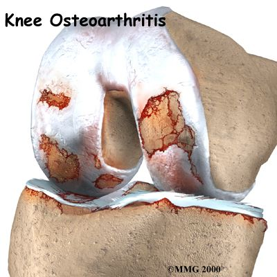 knee osteoarthritis treatments