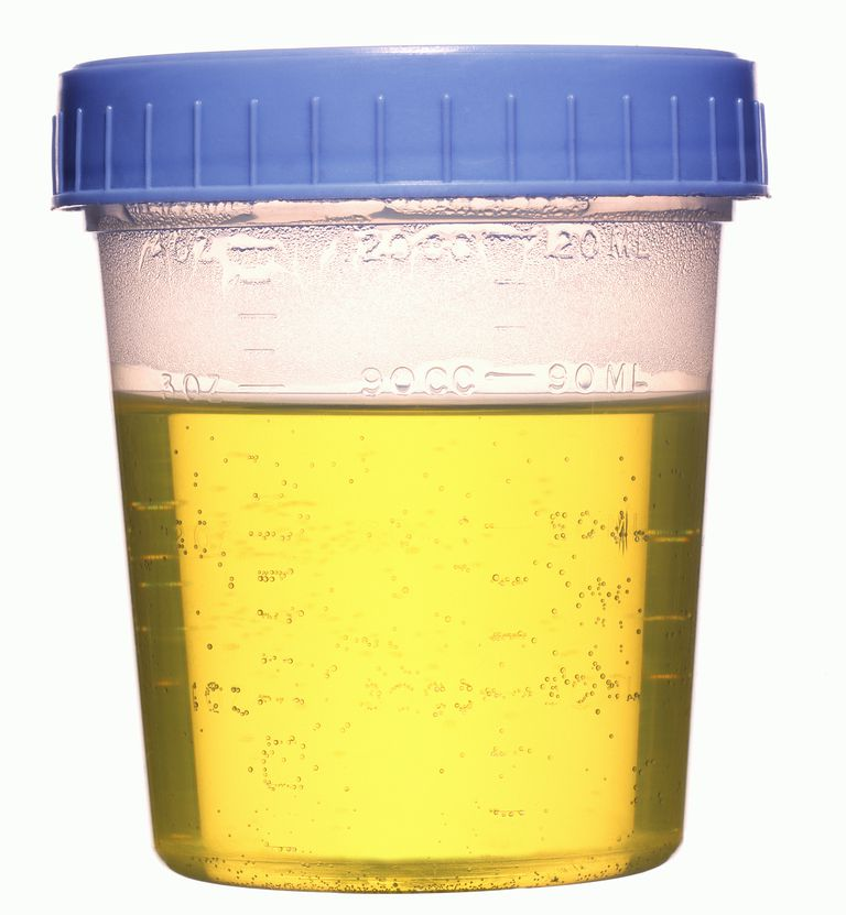 Urinalysis drug testing