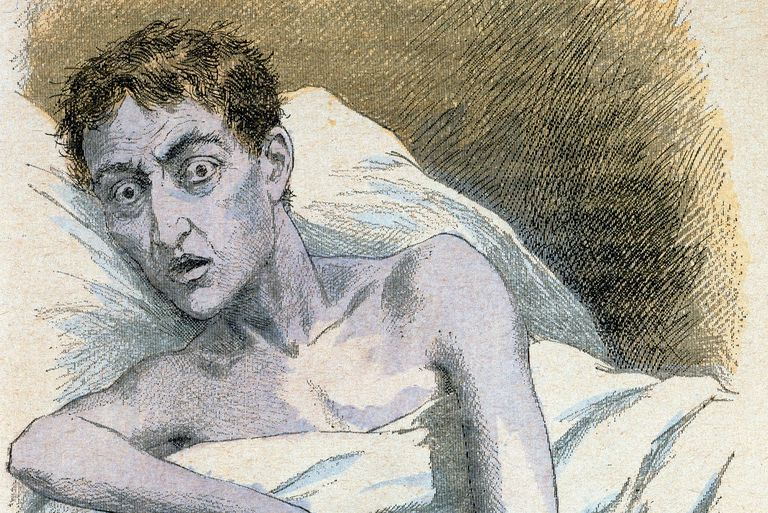 Cholera victim with bluish skin in early medical textbook.
