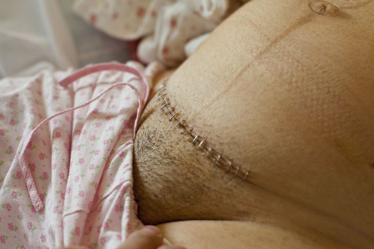 Cesarean Incision with Staples