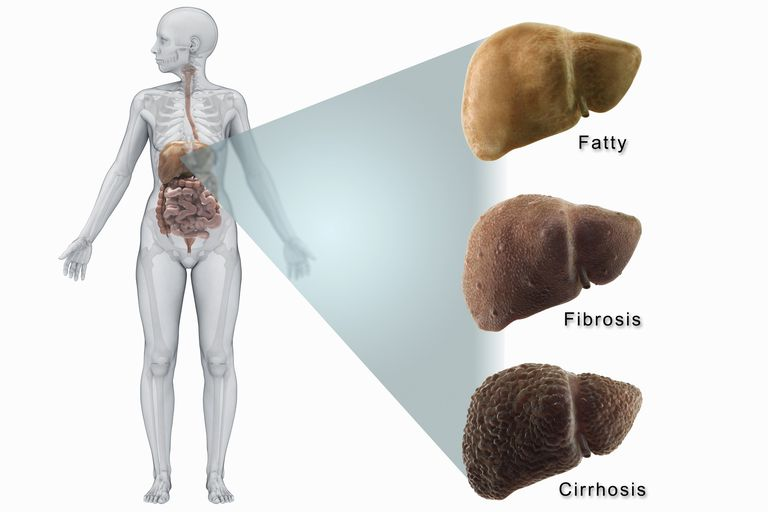 The human liver shown in stages of liver disease.