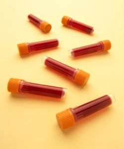 Blood Tests Image