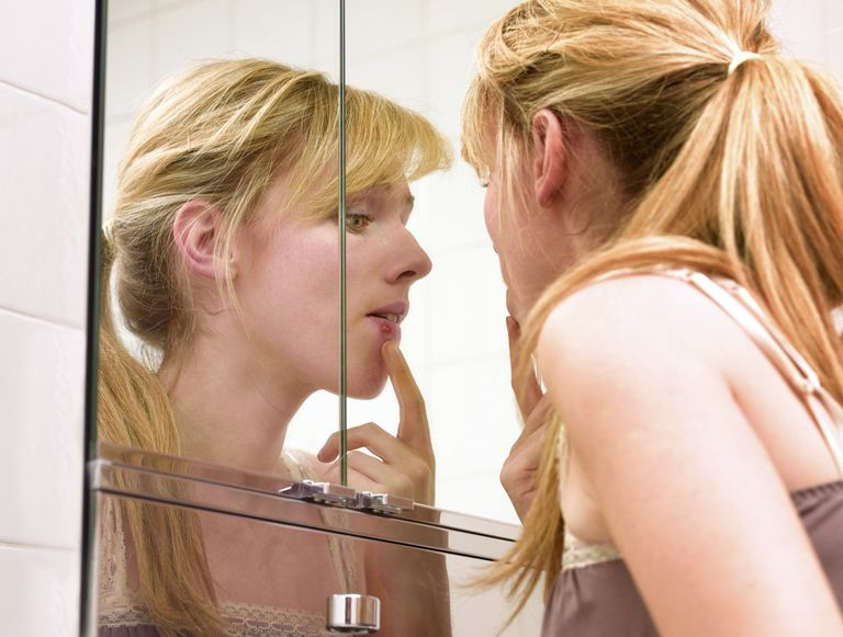 woman looking at mouth sore in mirror