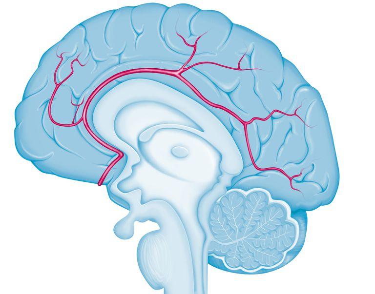 Cerebral Arteries
