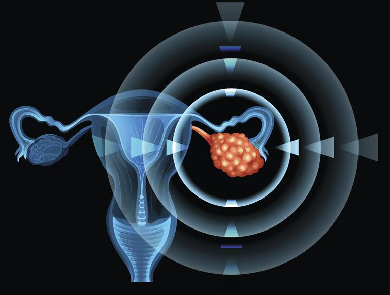 diagram of mass which is ovarian cancer