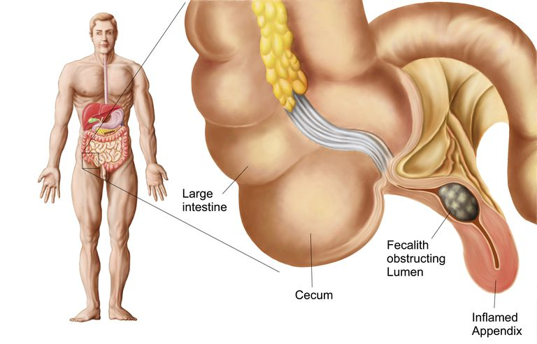 Inflamed appendix