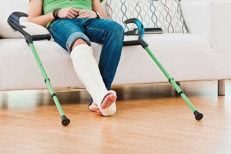 broken leg casted