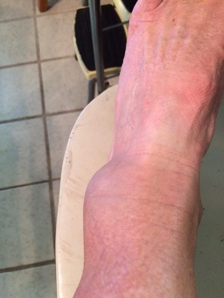 Broken Ankle Symptoms And Treatment