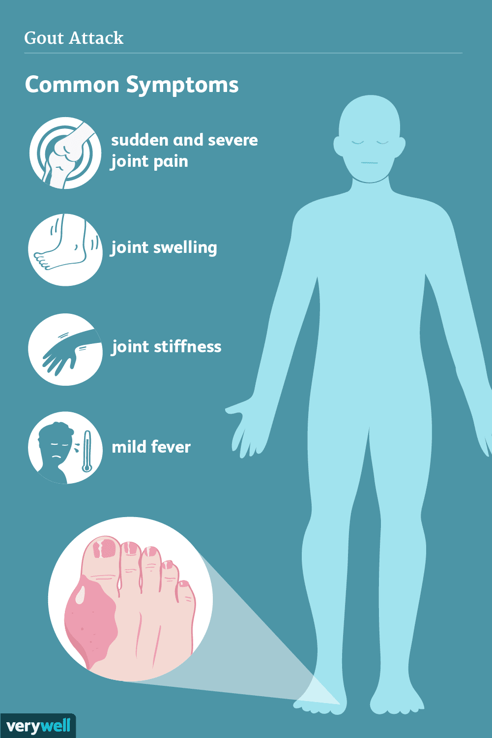 Gout: Signs, Symptoms, And Complications