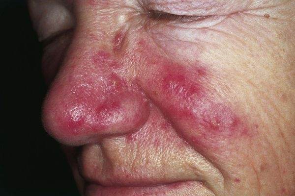 Rosacea. Erythema and telangiectasia are seen over the cheeks, nasolabial area and nose. Inflammatory papules and pustules can be observed over the nose. The absence of comedos is a helpful tool to distinguish rosacea from acne.