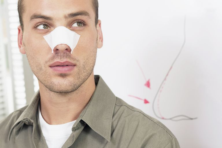 Man with a bandage over his nose