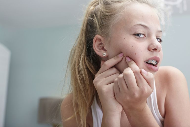 Teenage girl squeezing a spot