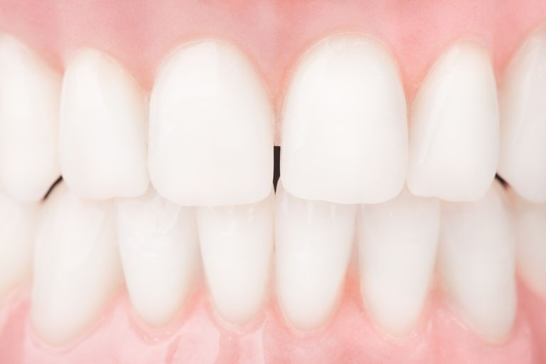 Whitened teeth after dental procedure