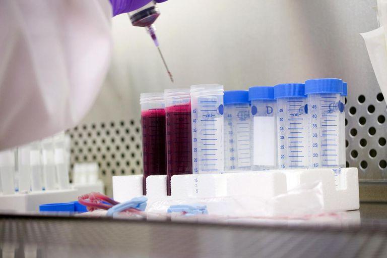 Vials in lab