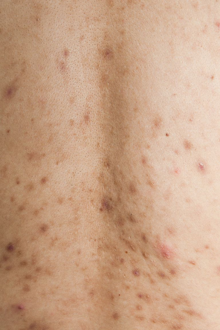Post-inflammatory hyperpigmentation from acne on the back.