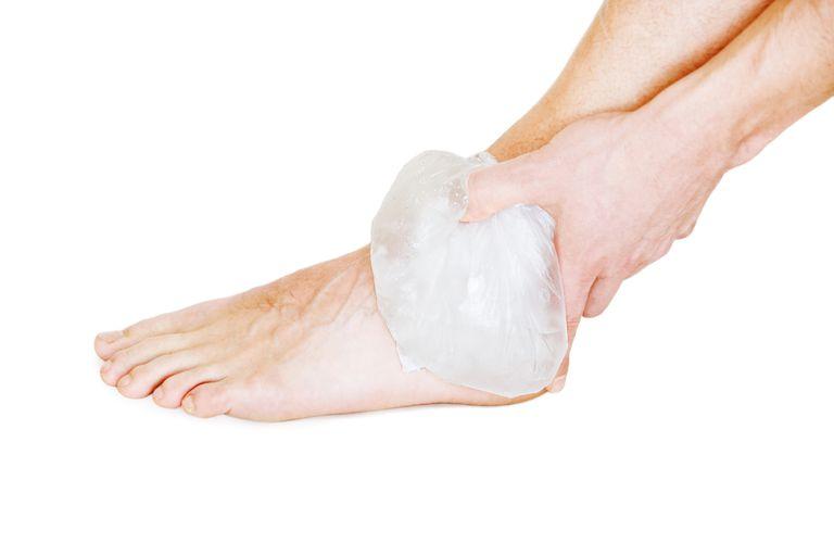 ice ankle sprain