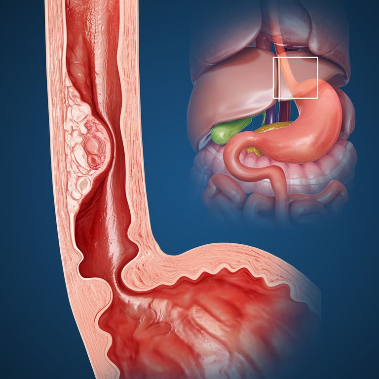 Esophageal stricture
