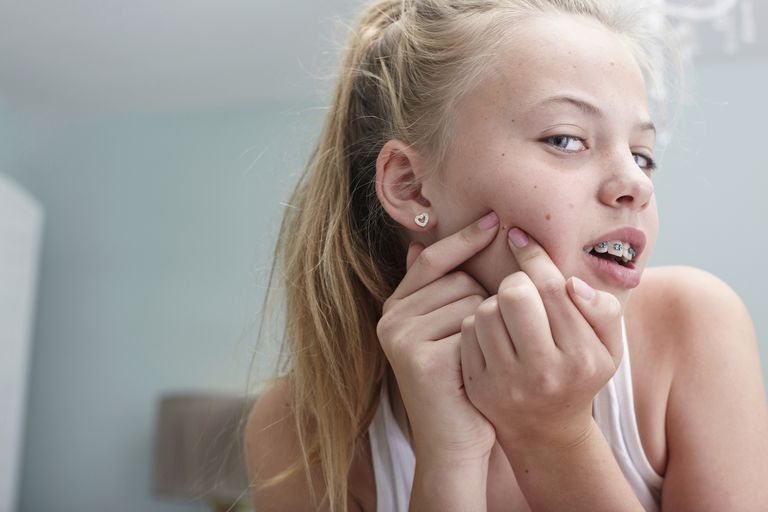 Acne during the preteen years is very common.
