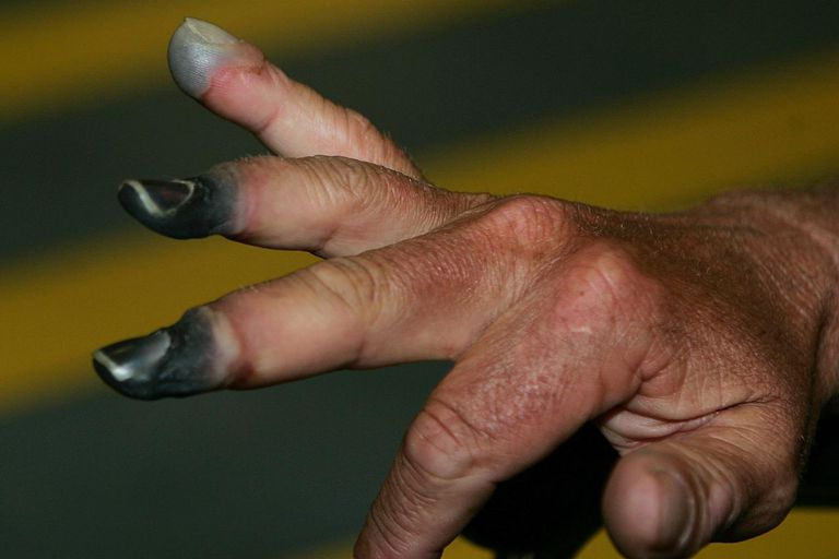 New Zealand climber Mark Inglis, a double-amputee, shows his badly frostbitten fingers as he arrives at Auckland International airport after returning from Kathmandu May 25, 2006 in Auckland, New Zealand.
