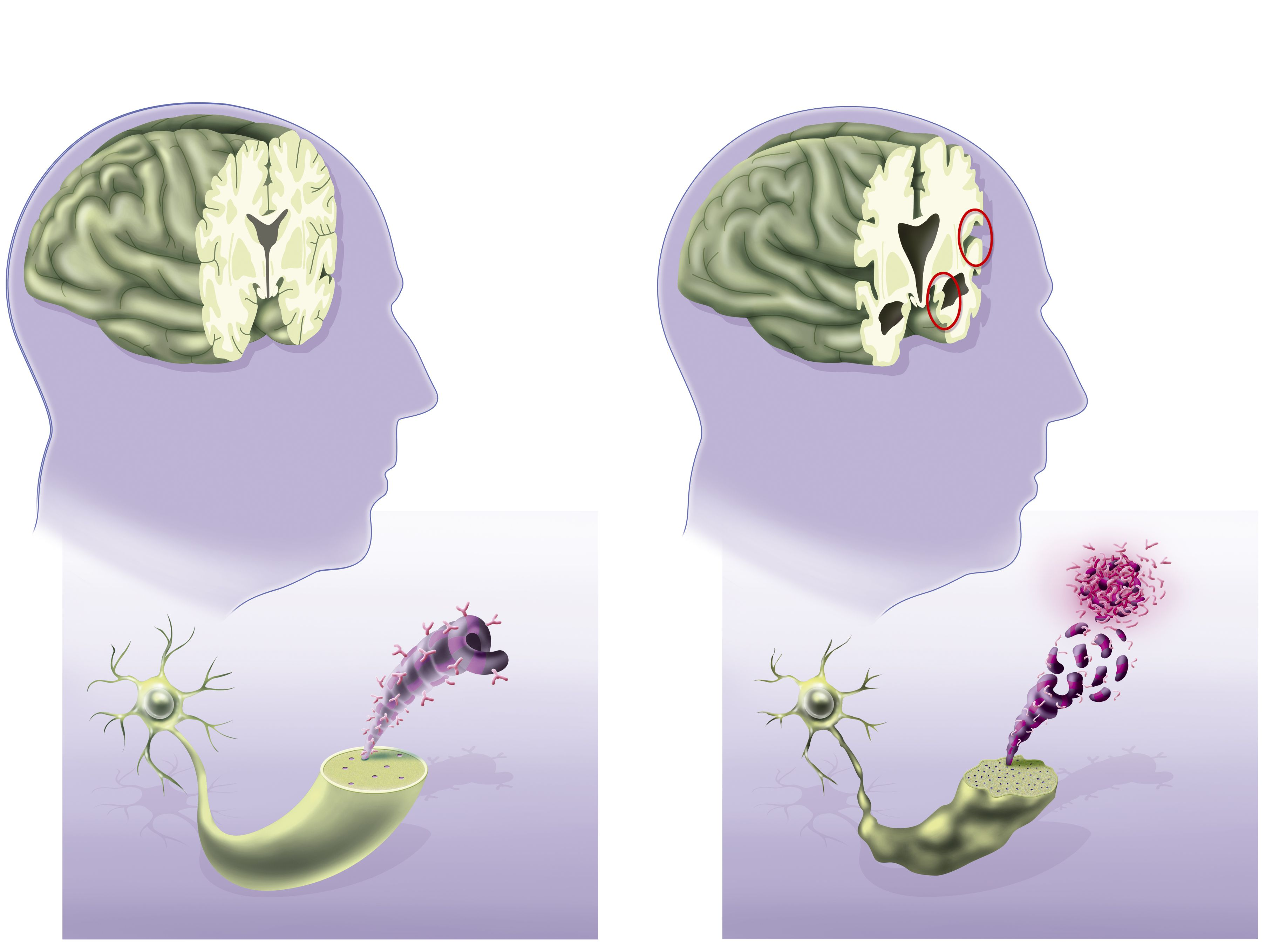 alzheimers disease 7 Alzheimer disease 7 information including symptoms, diagnosis, misdiagnosis, treatment, causes, patient stories, videos, forums, prevention, and prognosis.