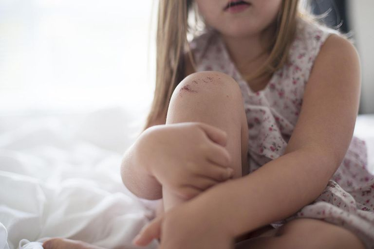 Young girl with a grazed knee, sitting