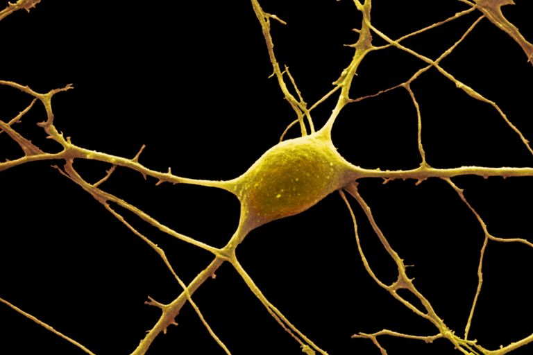 The anatomy of neurons human biology colored scanning electron micrograph sem of a purkinje nerve cell from the cerebellum of the brain the cell comprises a flask shaped cell body ccuart Choice Image