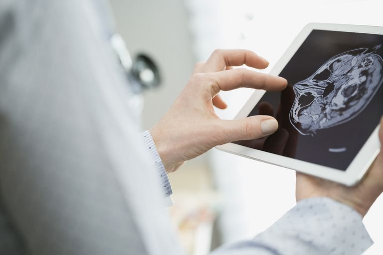 Female doctor examining brain scan on digital tablet
