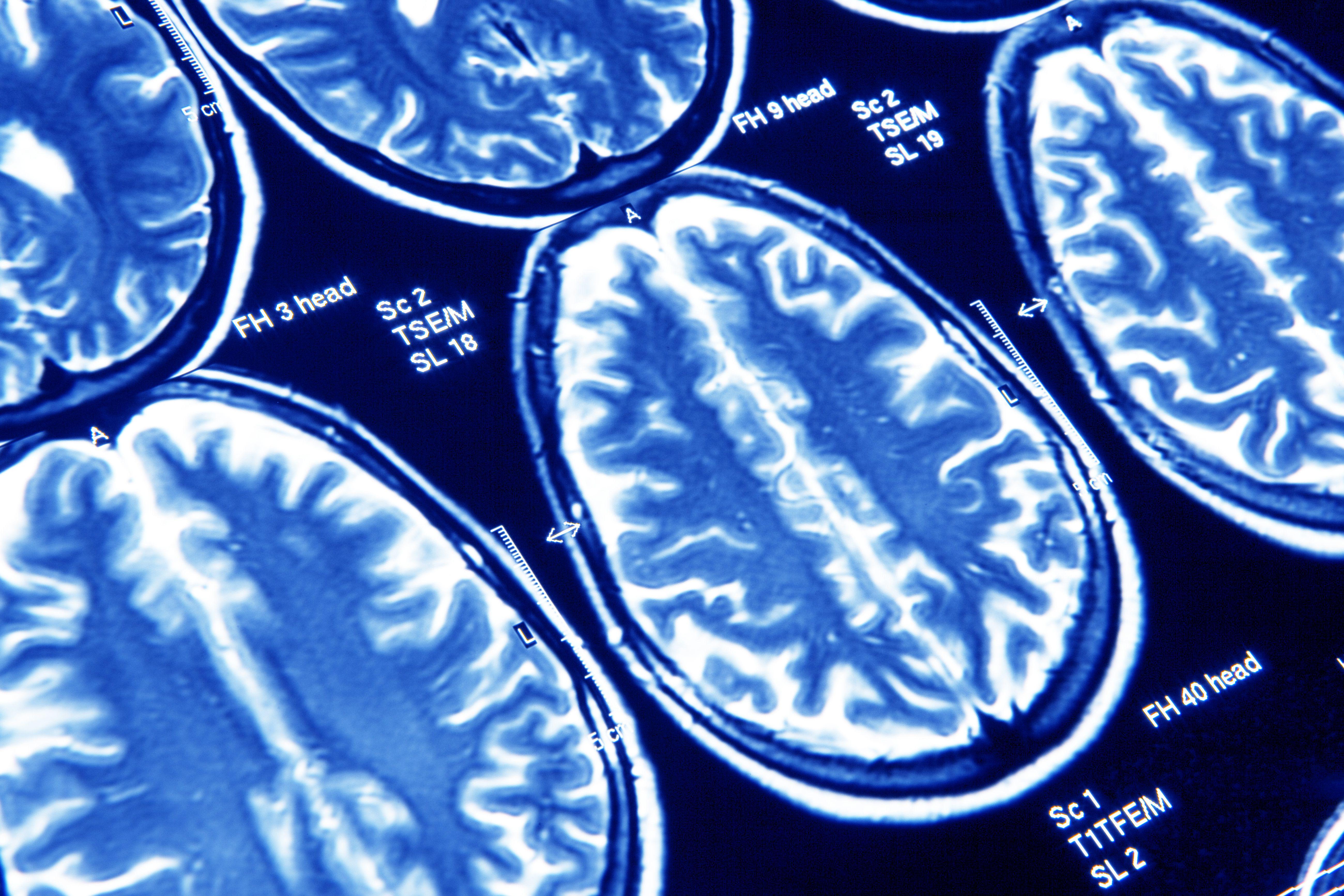 Psychiatry/Psychology/Mental Health And Neurology For All - portada
