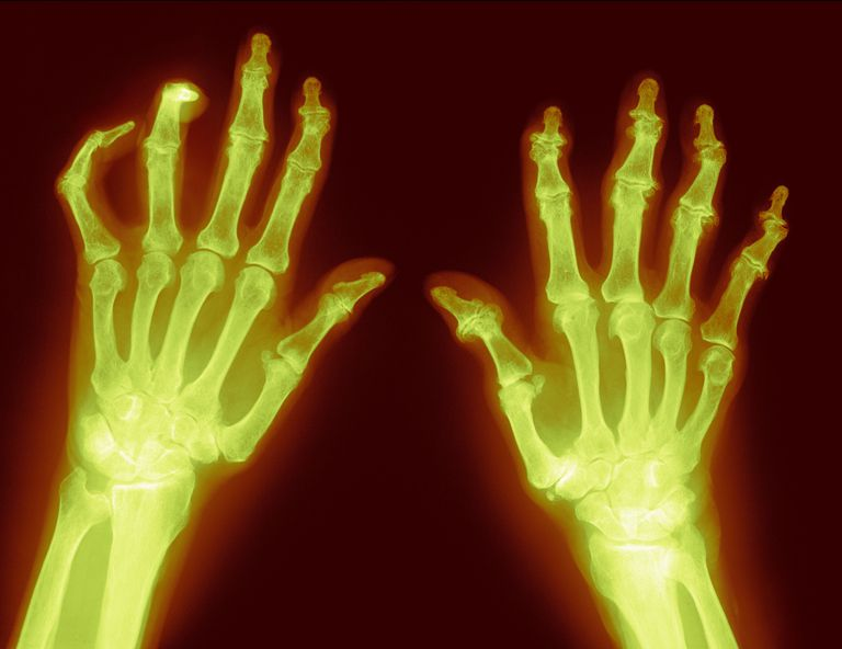 X-ray of human hands showing osteoarthritis (Colour Enhanced)