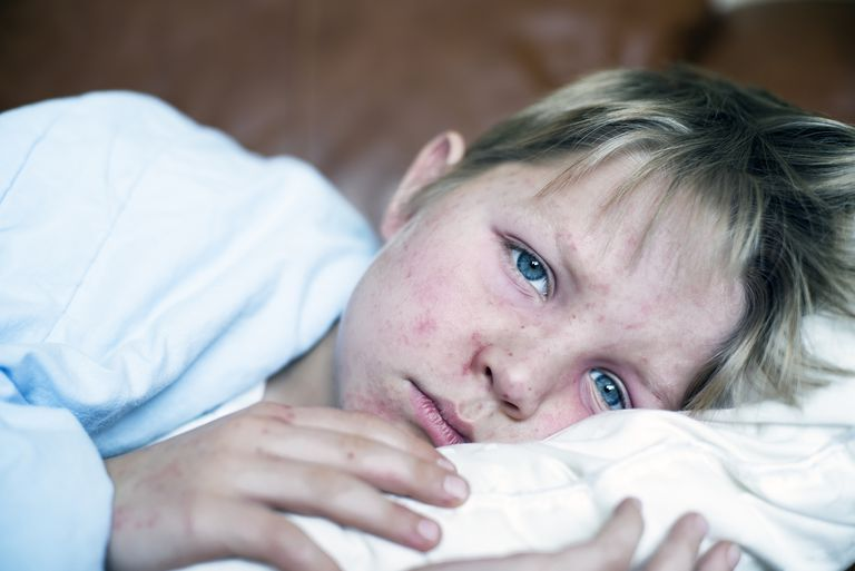 Measles Very sick 5 year old little boy fighting measles infection, boy is laying in bed under the blanket with a agonizing expression, boy is covered with rash caused by virus.
