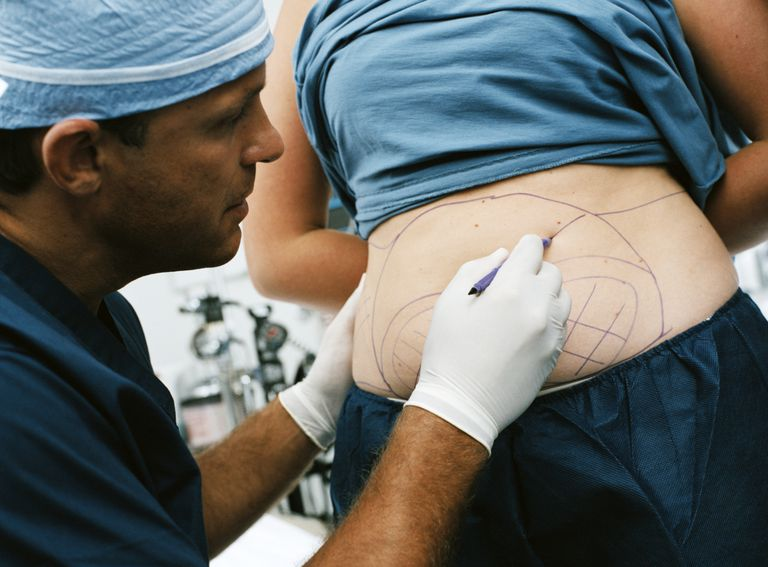 plastic surgeon drawing on patient for liposuction