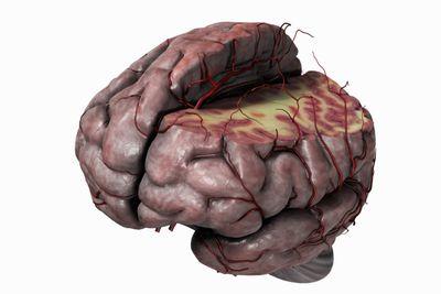 get a description and diagram of thalamus gray matter sheep brain diagram quiz