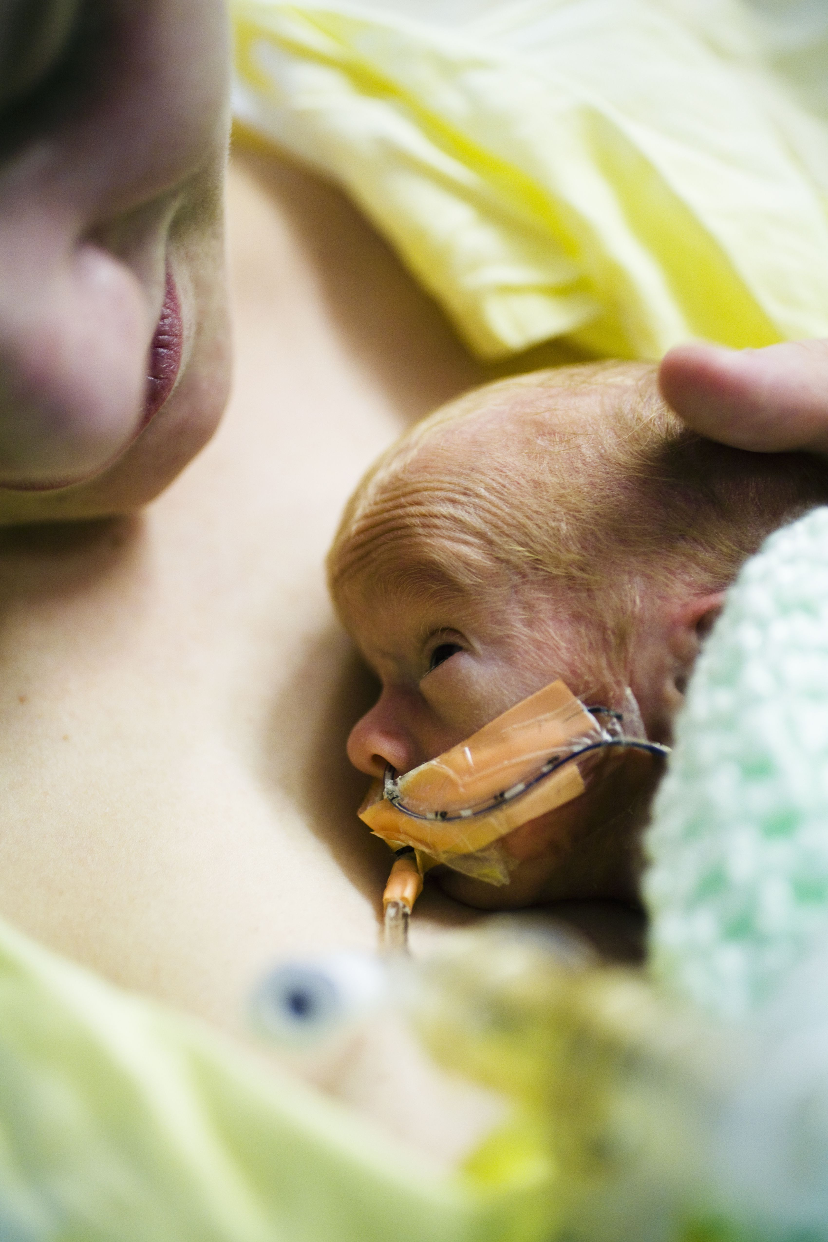 The Importance Of Kangaroo Care In The Nicu