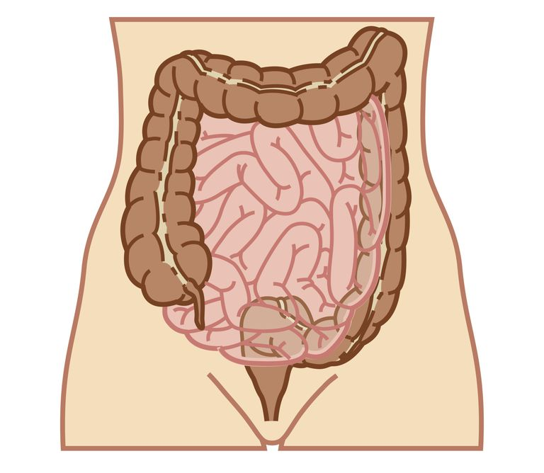 Intestinal Complications Of Ibd
