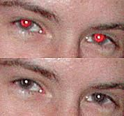 Red Eye Before & After Example