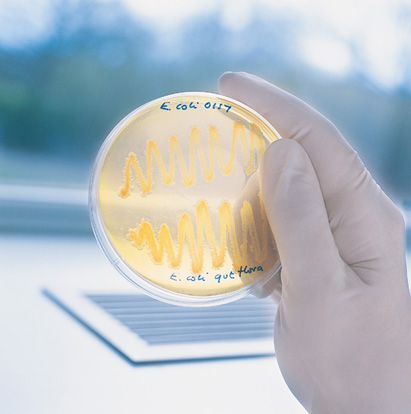 Hand Holding Petri Dish Containing E Coli Bacteria for Research in Microbiology