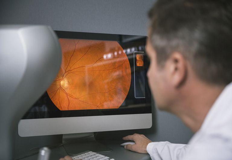 I got Optometrist Isn't a Good Career Choice. Should You Become an Optometrist?