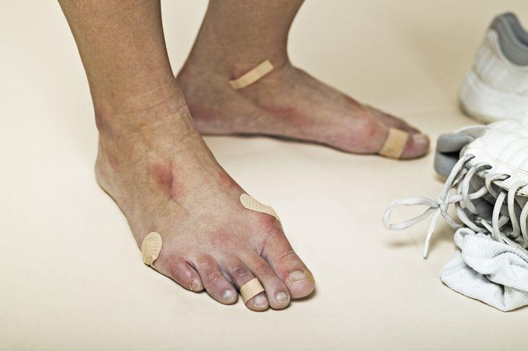Blister Bandaged Feet